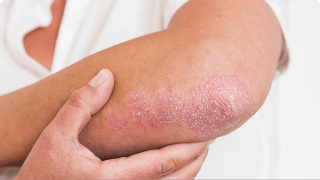Psoriasis appearing on the elbow